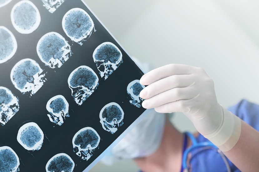 What is a Brain Injury?