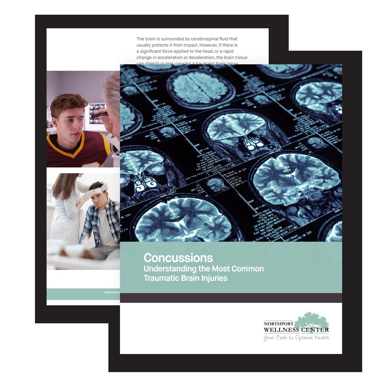 concussion ebook